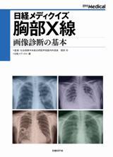 日経メディクイズ 胸部X線 画像診断の基本